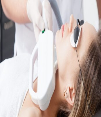 IPL Laser Rejuvenation – Neck