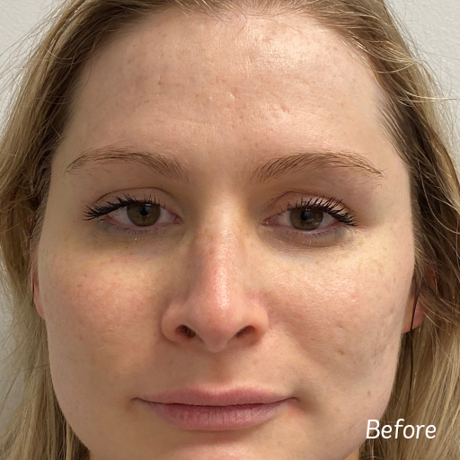 Microneedling Acne Scars Before